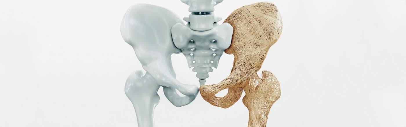 οστεοπορωτικά κατάγματα σε ηλικιωμένους ορθοπαιδικός χειρουργός λιβέρης ιάσων παγκράτι αθήνα